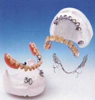 活動牙架金屬 Framework Metals